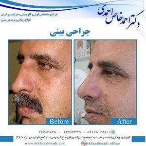 جراح بینی خوب در تهران